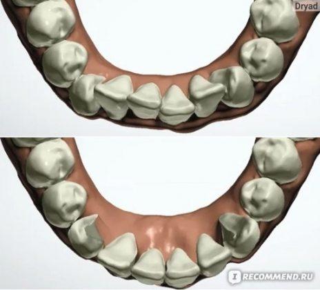 Компьютерная 3D модель зубов до лечения и какими должны стать после лечения.